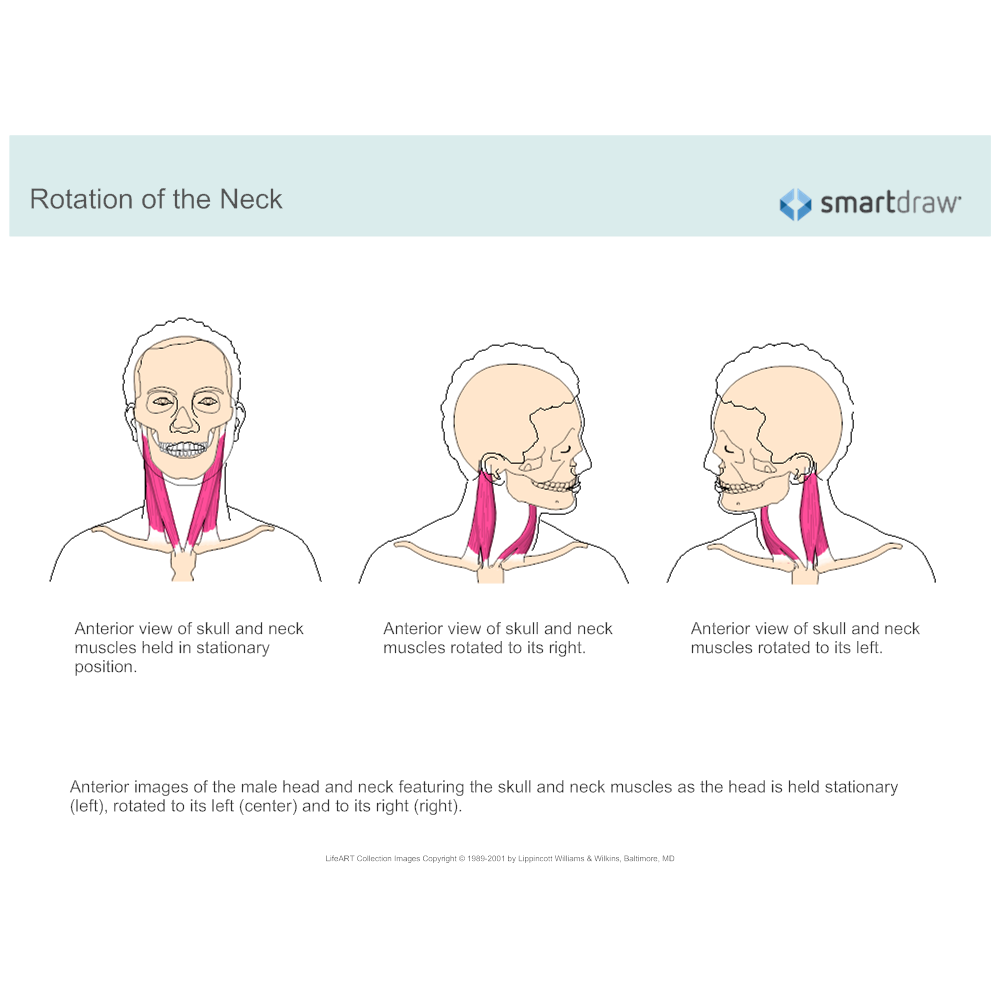 Example Image: Rotation of the Neck