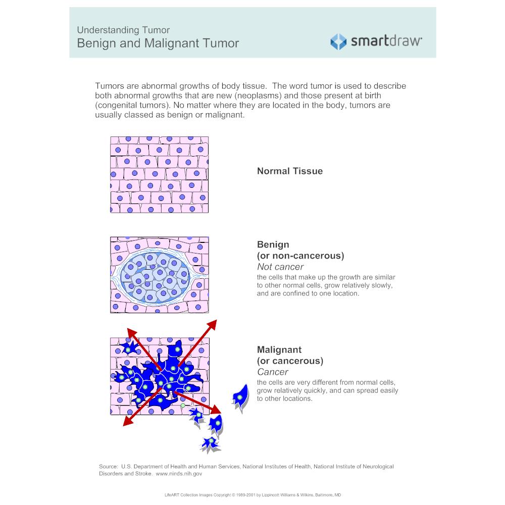 Example Image: Benign and Malignant Tumor
