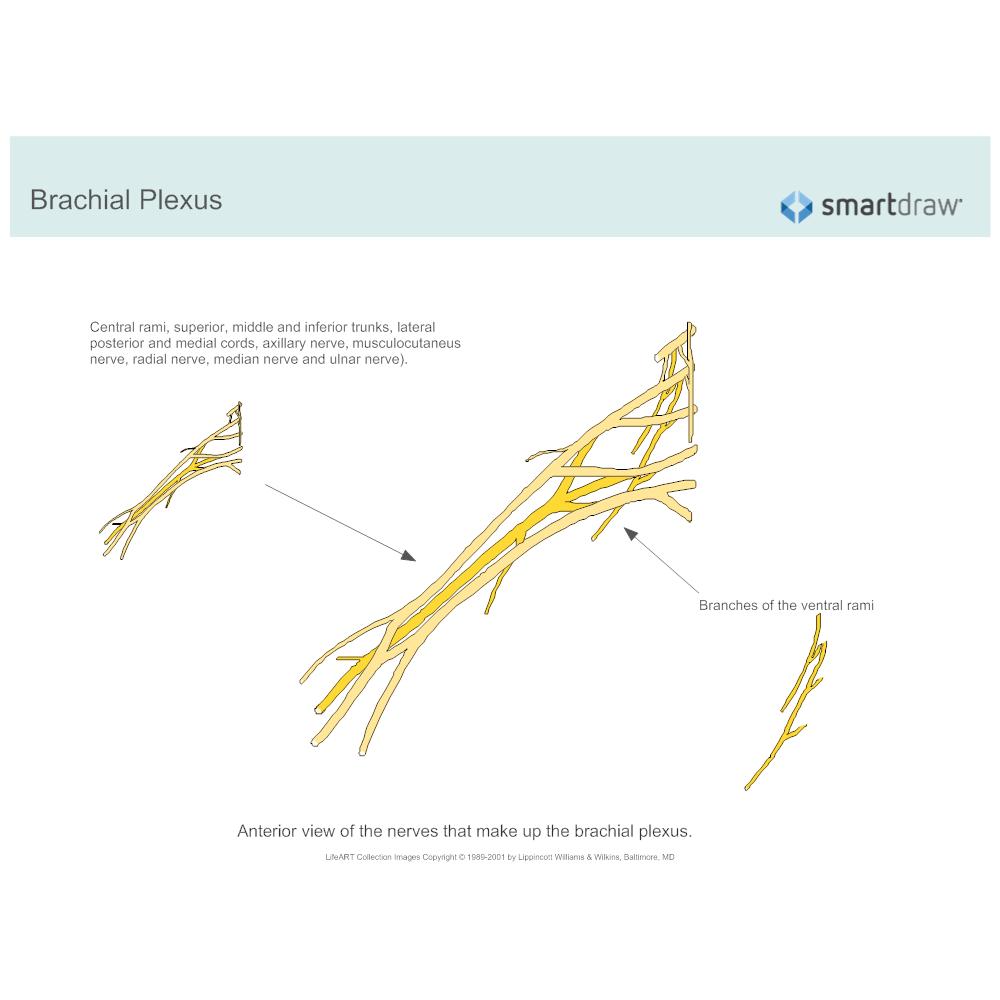 Example Image: Brachial Plexus