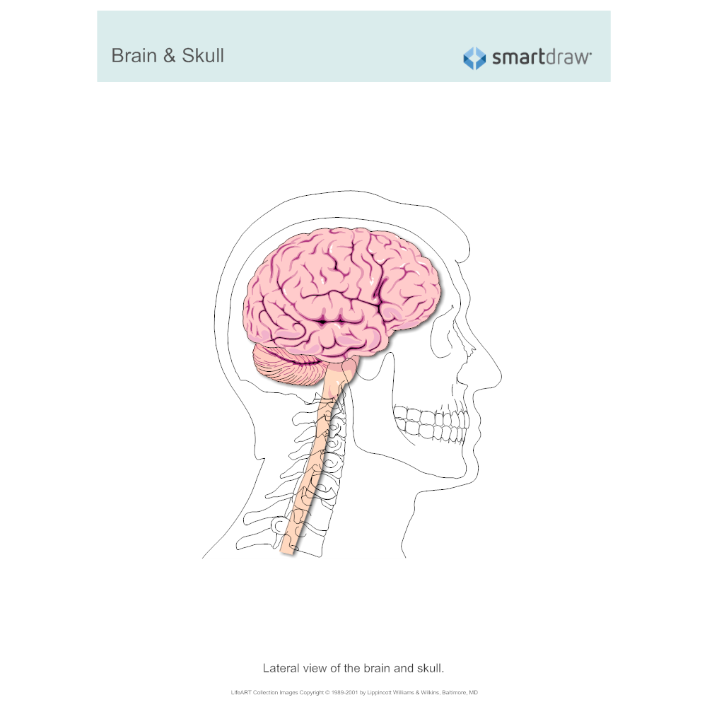 Example Image: Brain & Skull - Lateral View