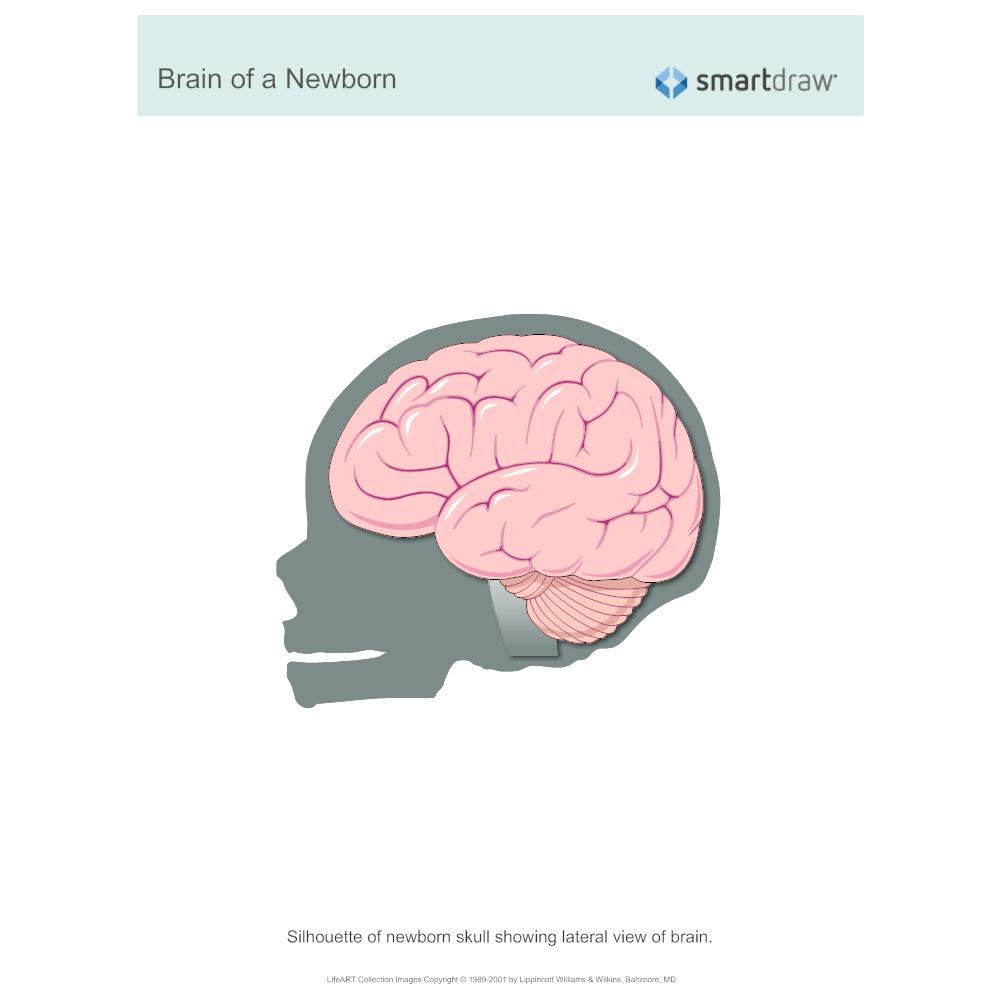 Example Image: Brain of a Newborn