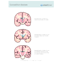 Coronal Brain Sections
