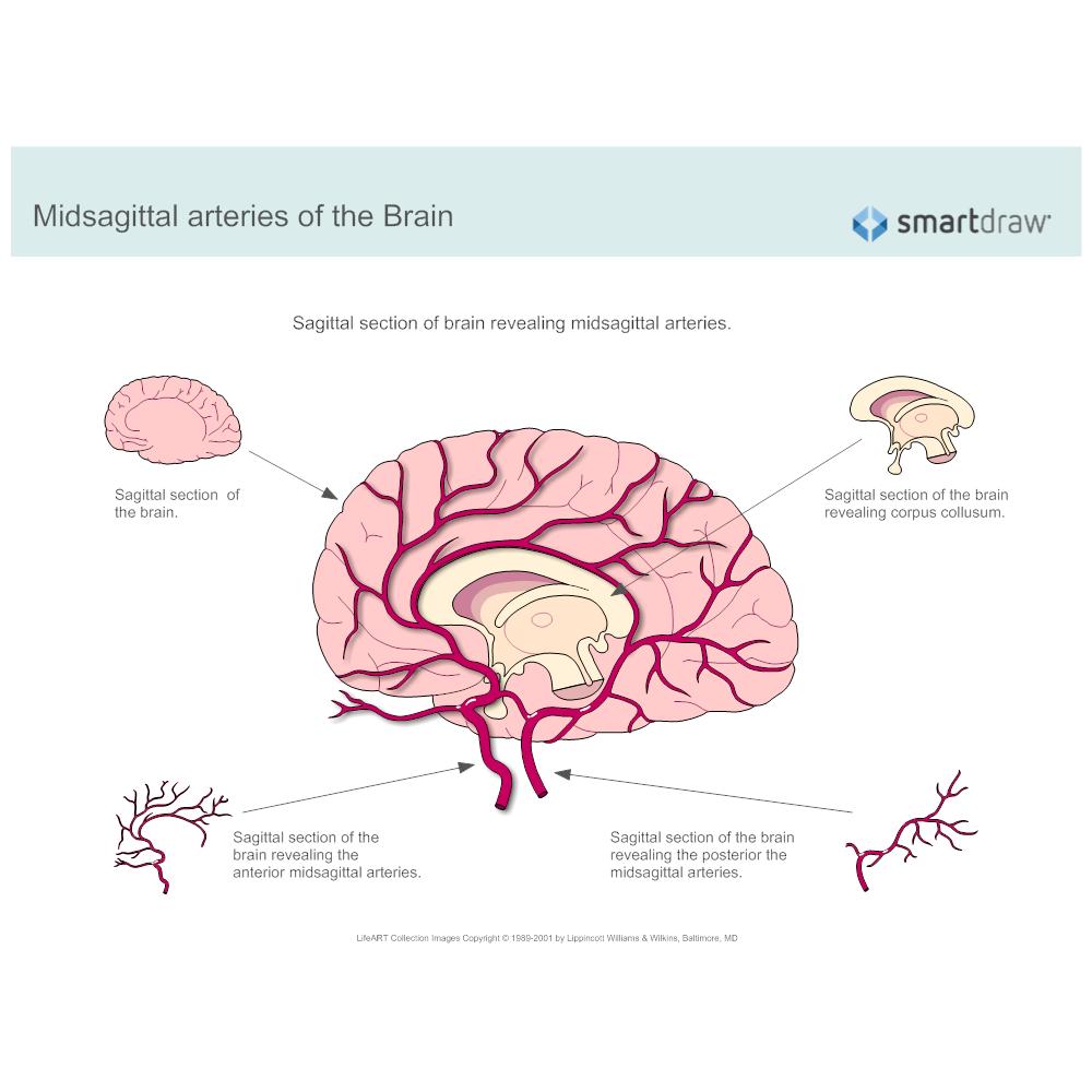 Example Image: Midsagittal Arteries of the Brain