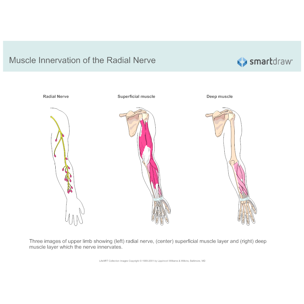 Example Image: Muscle Innervation of the Radial Nerve