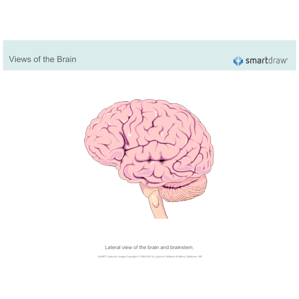 Example Image: The Brain - Lateral View - 1