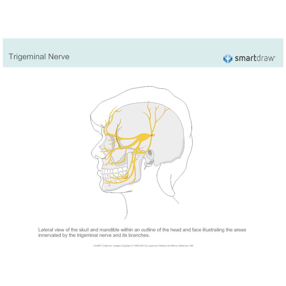 Example Image: Trigeminal Nerve