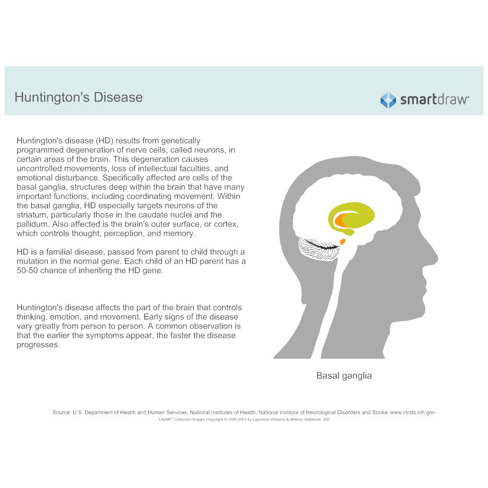 Example Image: Huntington's disease