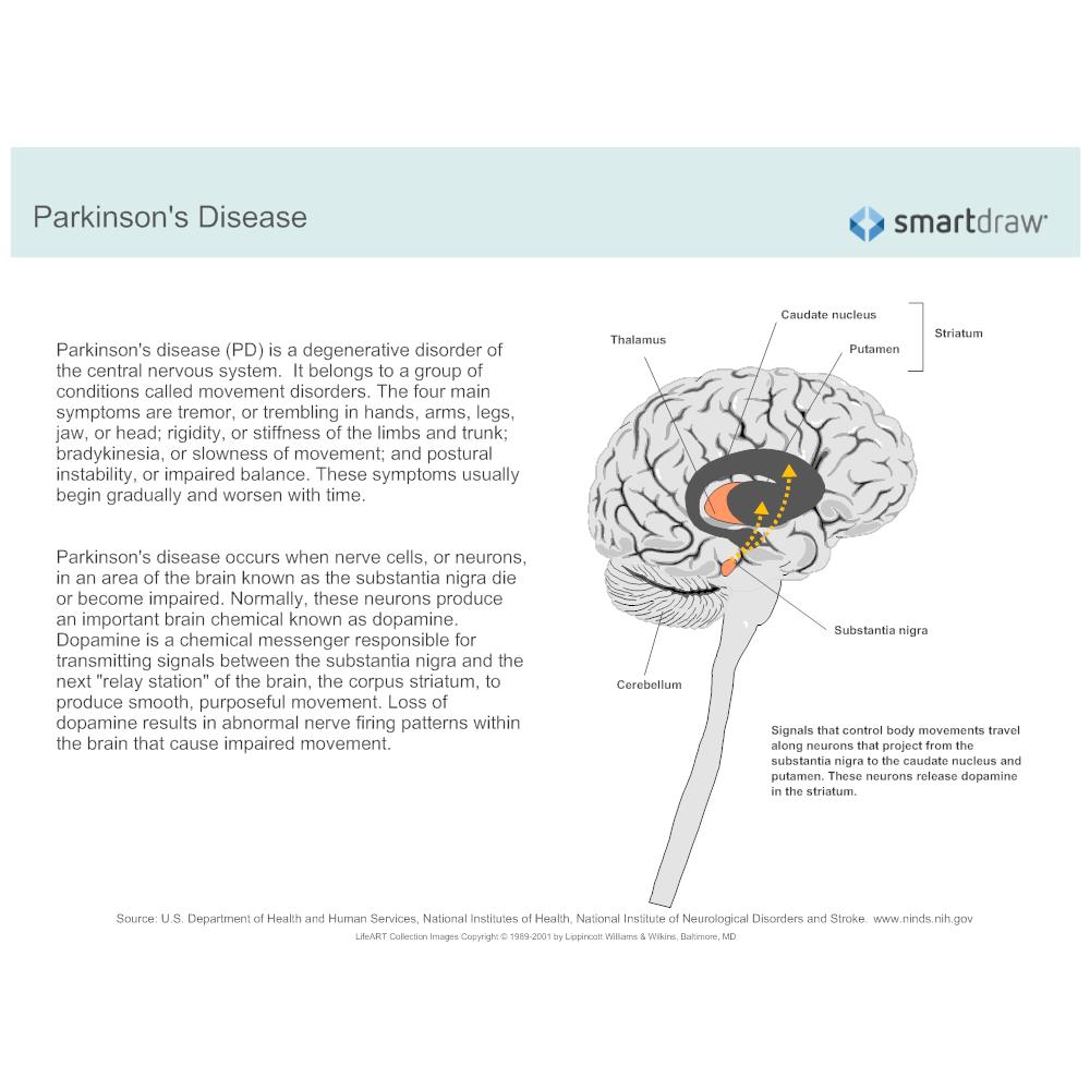 Example Image: Parkinson's disease