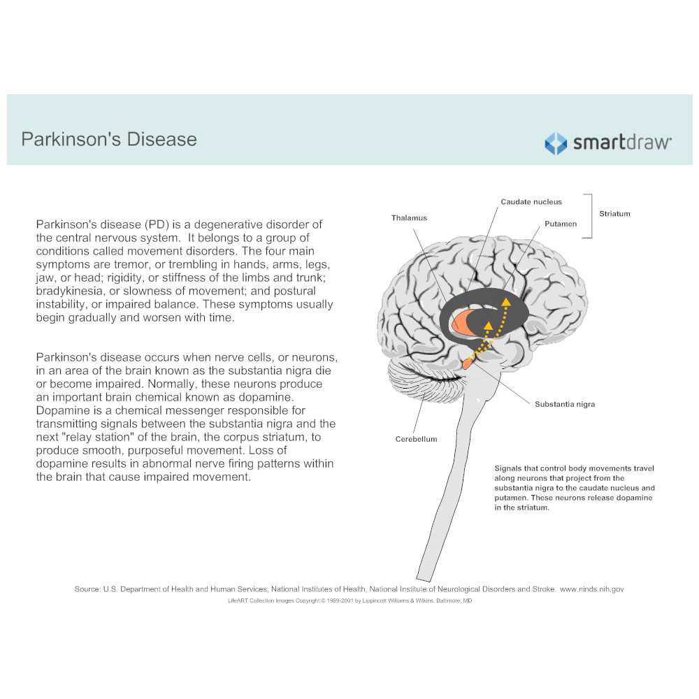 Example Image: Parkinson's disease