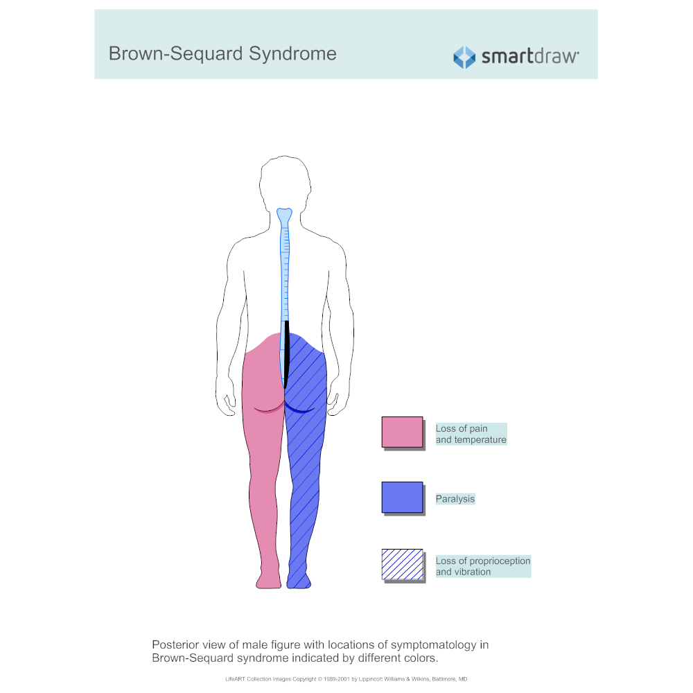 Example Image: Brown-Sequard Syndrome