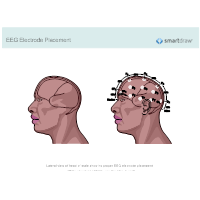 EEG Electrode Placement
