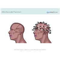 EEG Electrode Placement