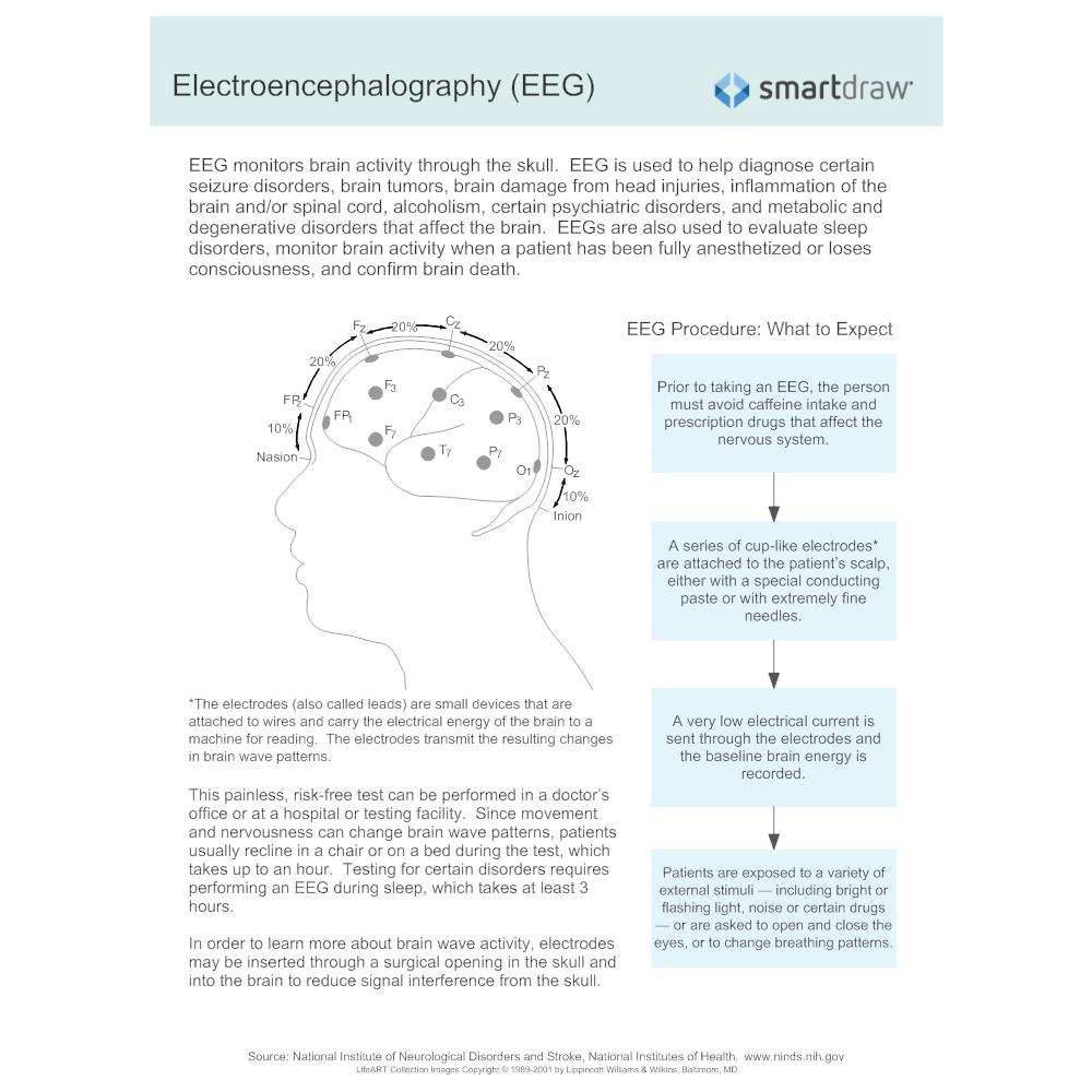 Example Image: Electroencephalography