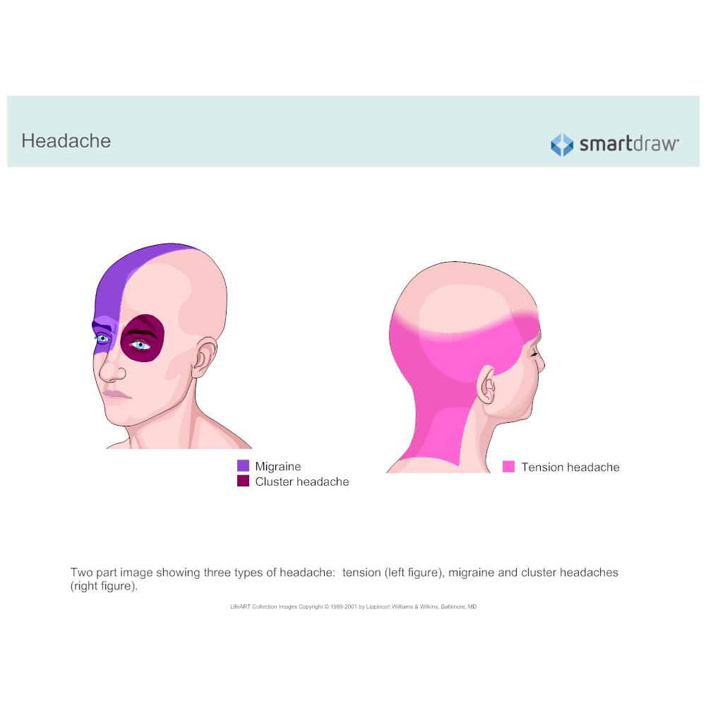 Example Image: Headaches