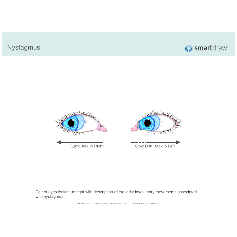 Example Image: Nystagmus