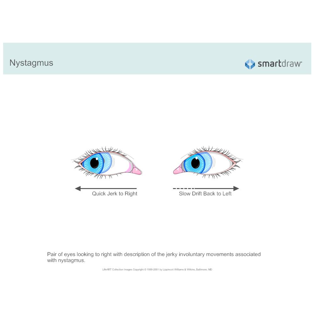 Example Image: Nystagmus