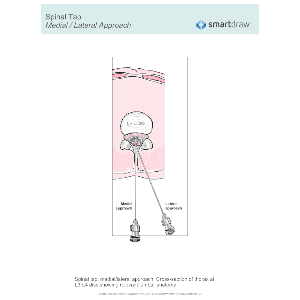Example Image: Spinal Tap - Approach