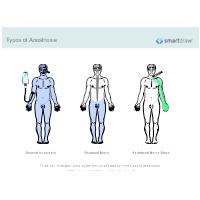 Types of Anesthesia