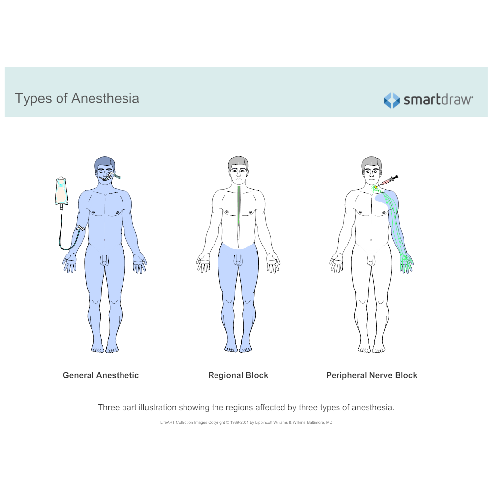 Example Image: Types of Anesthesia