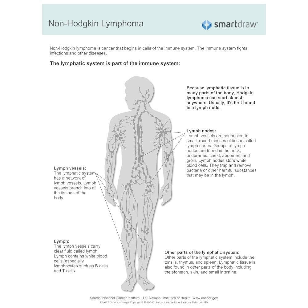 Example Image: Non-Hodgkin Lymphoma - 1