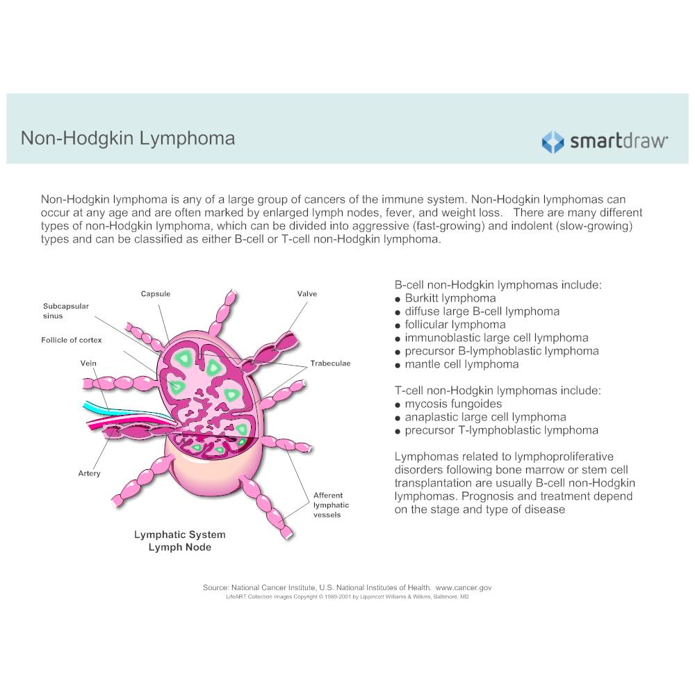 Example Image: Non-Hodgkin Lymphoma - 2