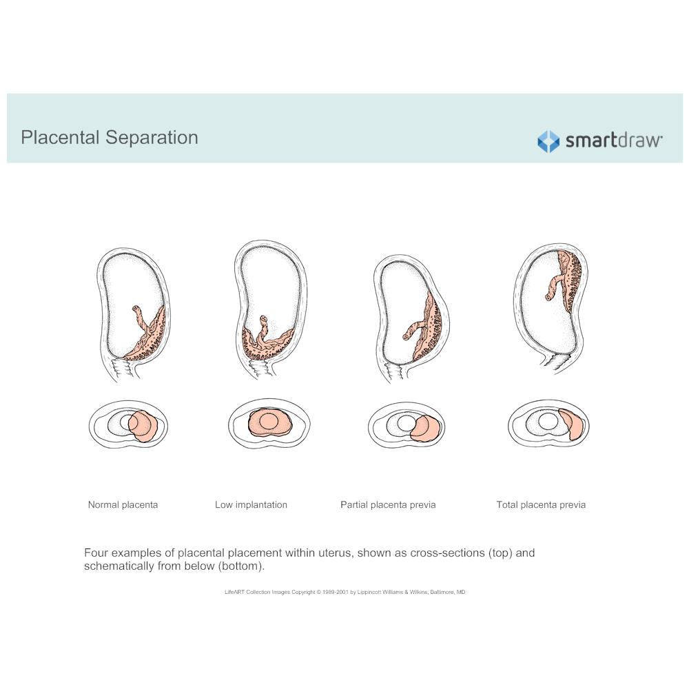 Example Image: Partial Placenta Previa