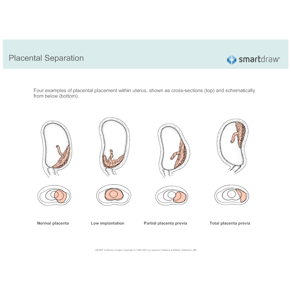 Example Image: Placental Separation