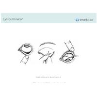 Eye Examination