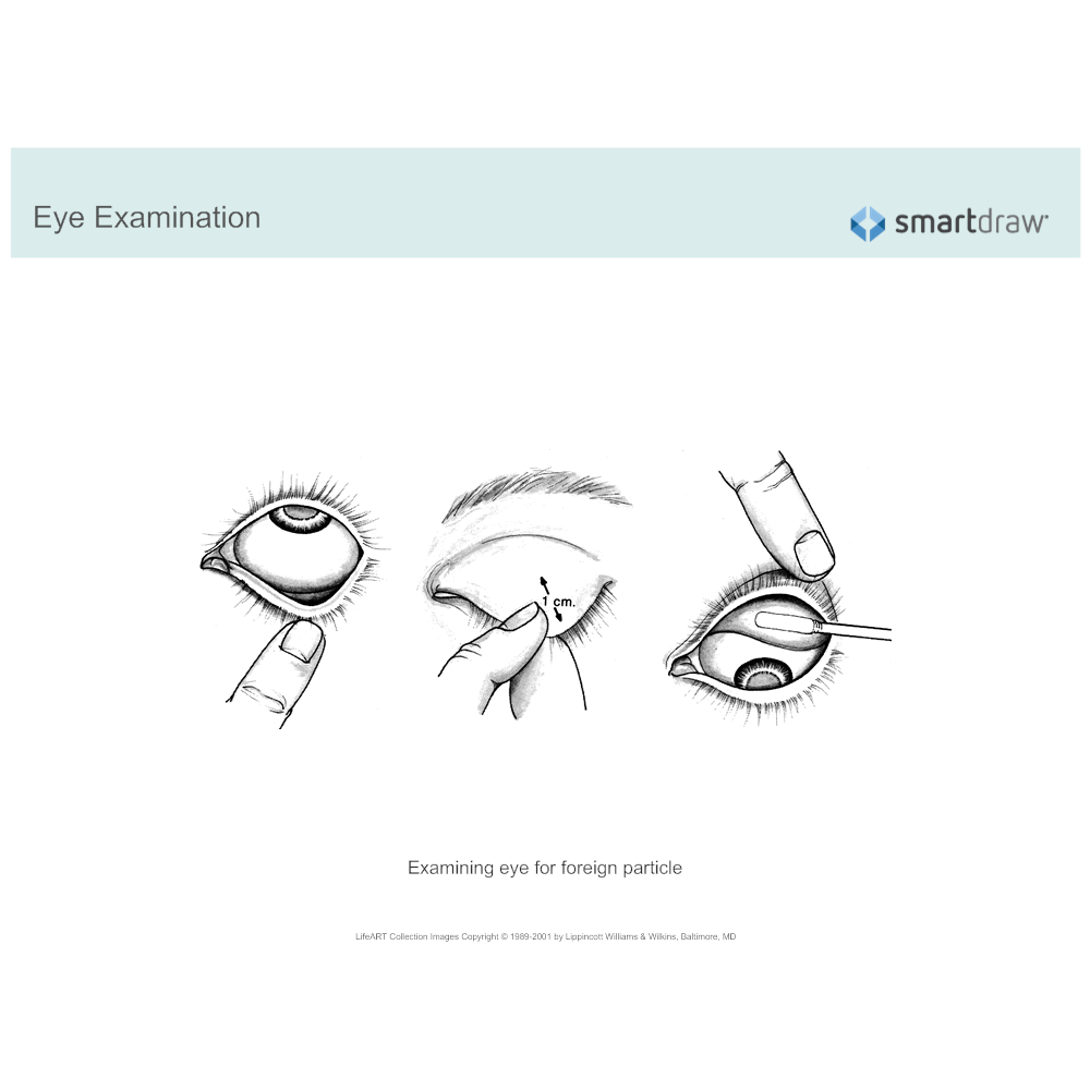 Example Image: Eye Examination