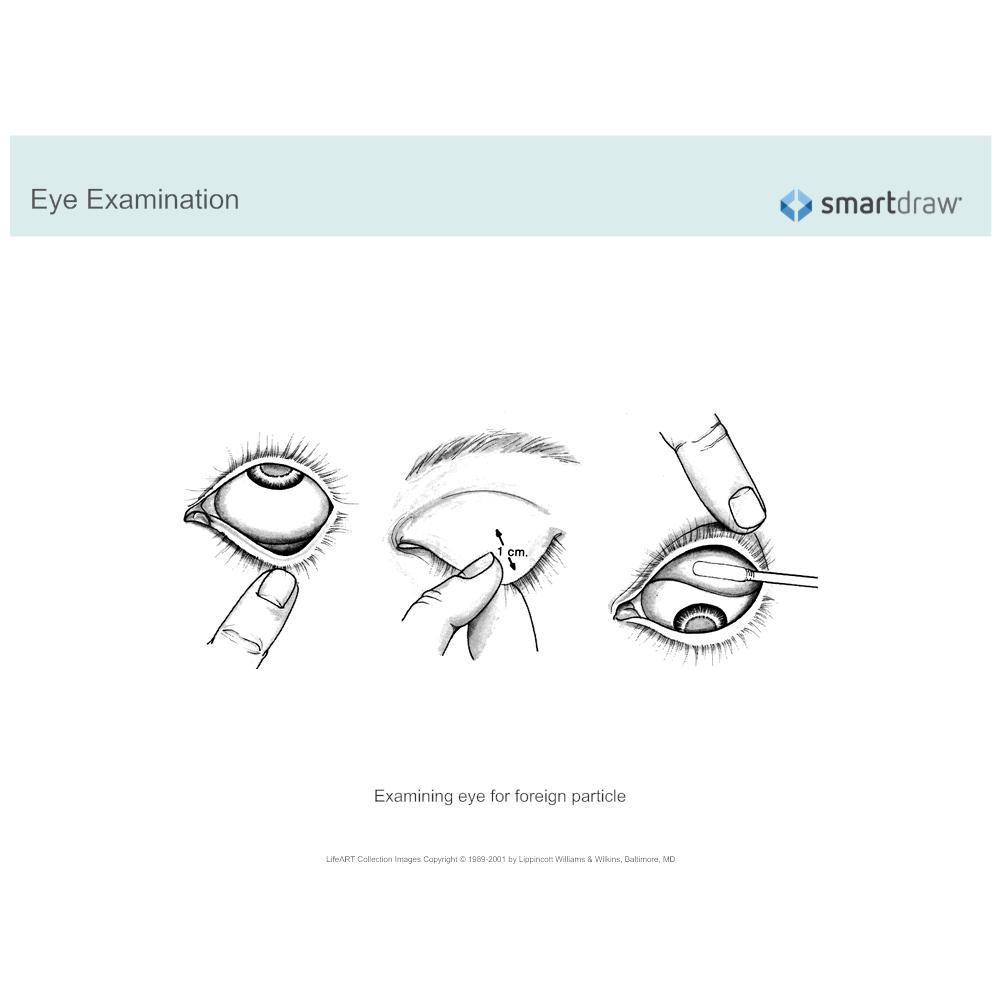 Example Image: Eye Examination