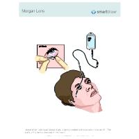 Morgan Lens
