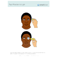 Pupil Reaction to Light