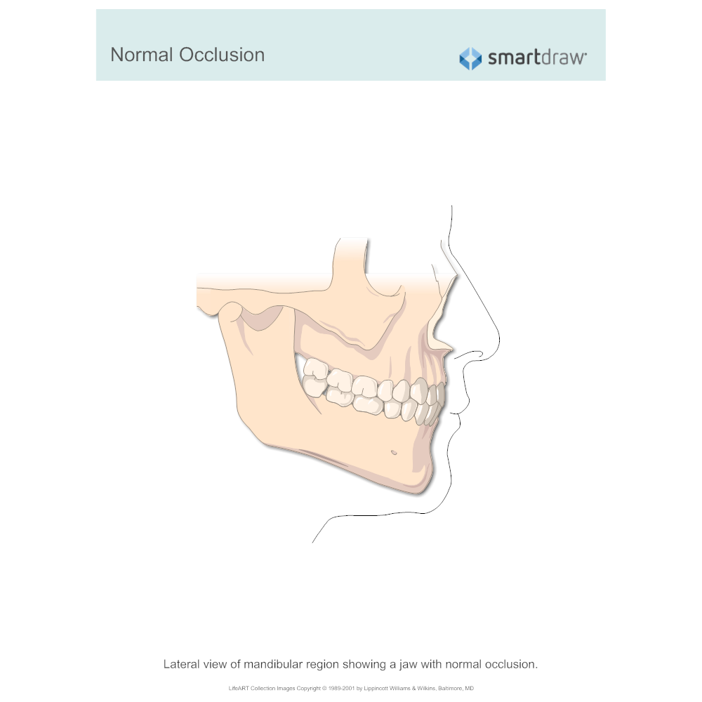 Example Image: Normal Occlusion