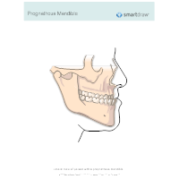 Prognathous Mandible
