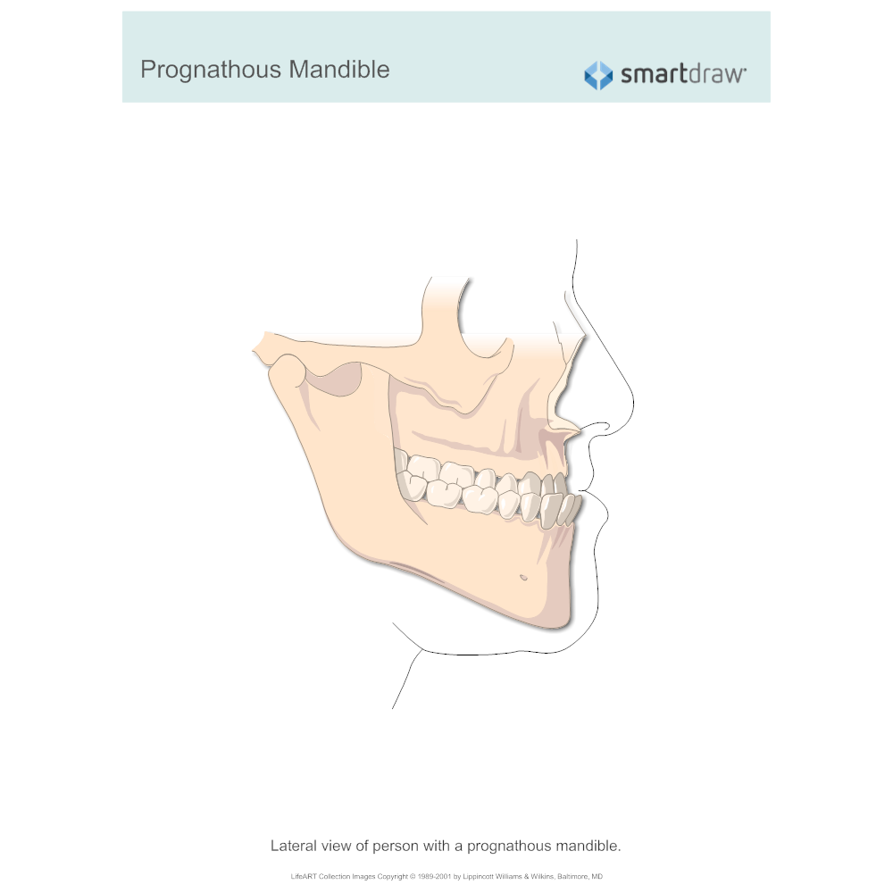 Example Image: Prognathous Mandible