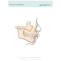 Retruded Mandible