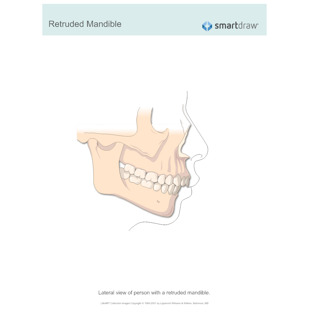 Example Image: Retruded Mandible