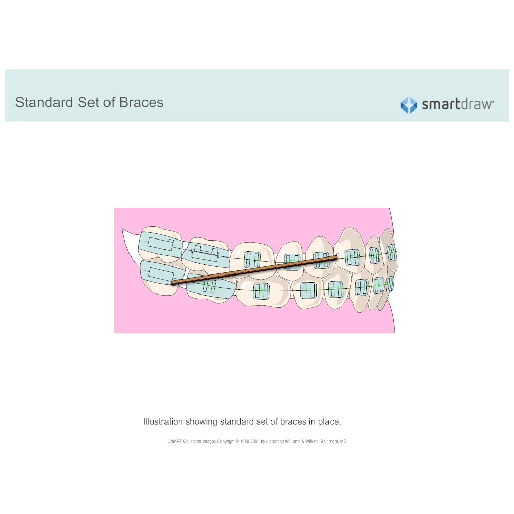 Example Image: Standard Set of Braces