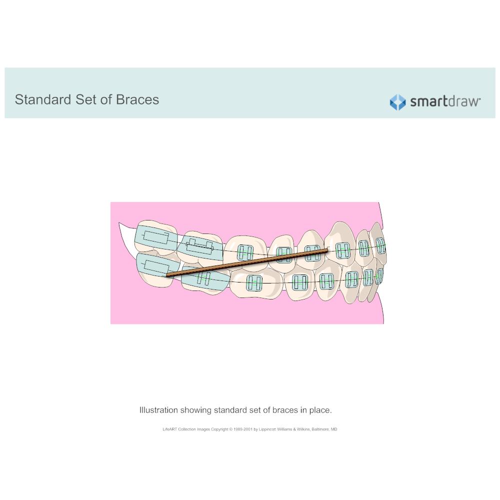 Example Image: Standard Set of Braces