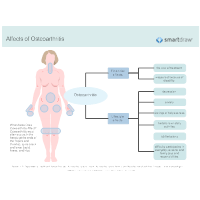 Affects of Osteoarthritis