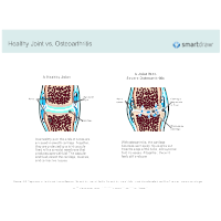 Healthy Joint vs Osteoarthritis