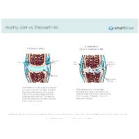 Healthy Joint vs Osteoarthritis
