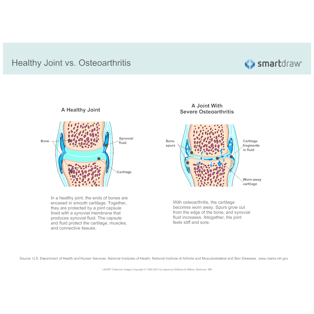 healthy joint vs osteoarthritis - Smartdraw Vs