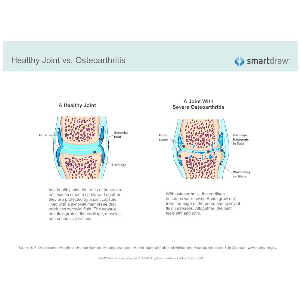 Example Image: Healthy Joint vs Osteoarthritis