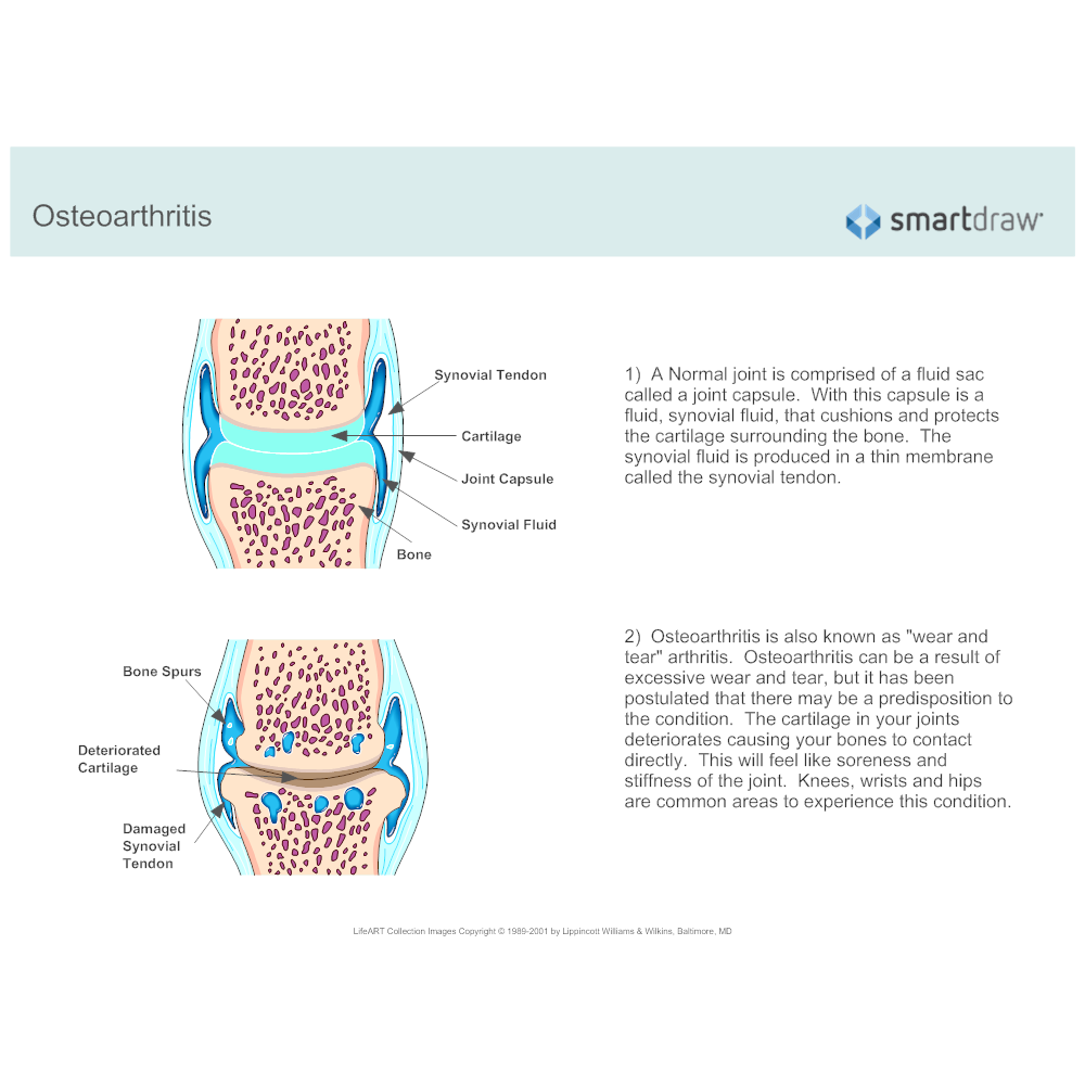 Example Image: Osteoarthritis Facts