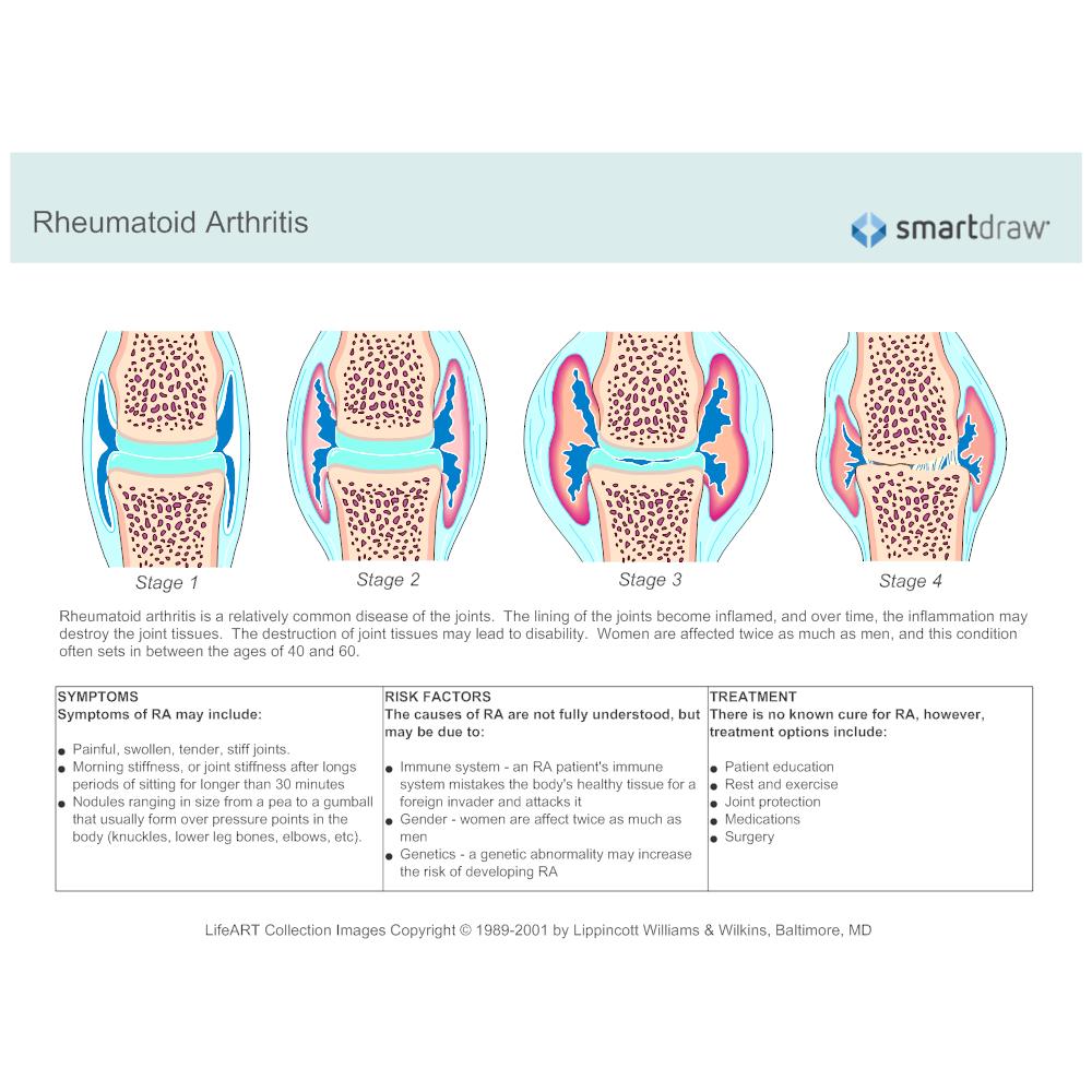 Schematic Diagram Example: Rheumatoid Arthritis