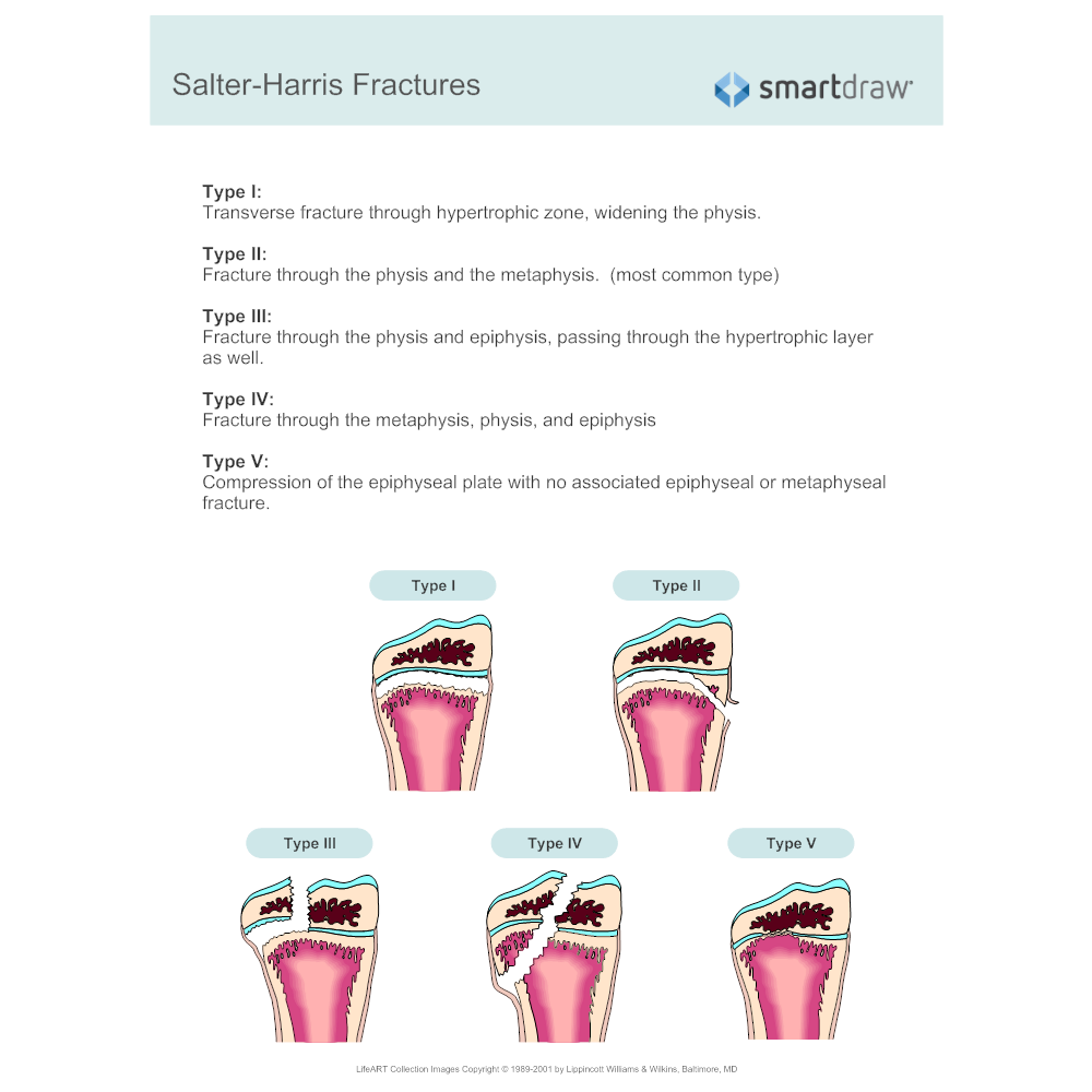 Example Image: Salter Fracture Classification