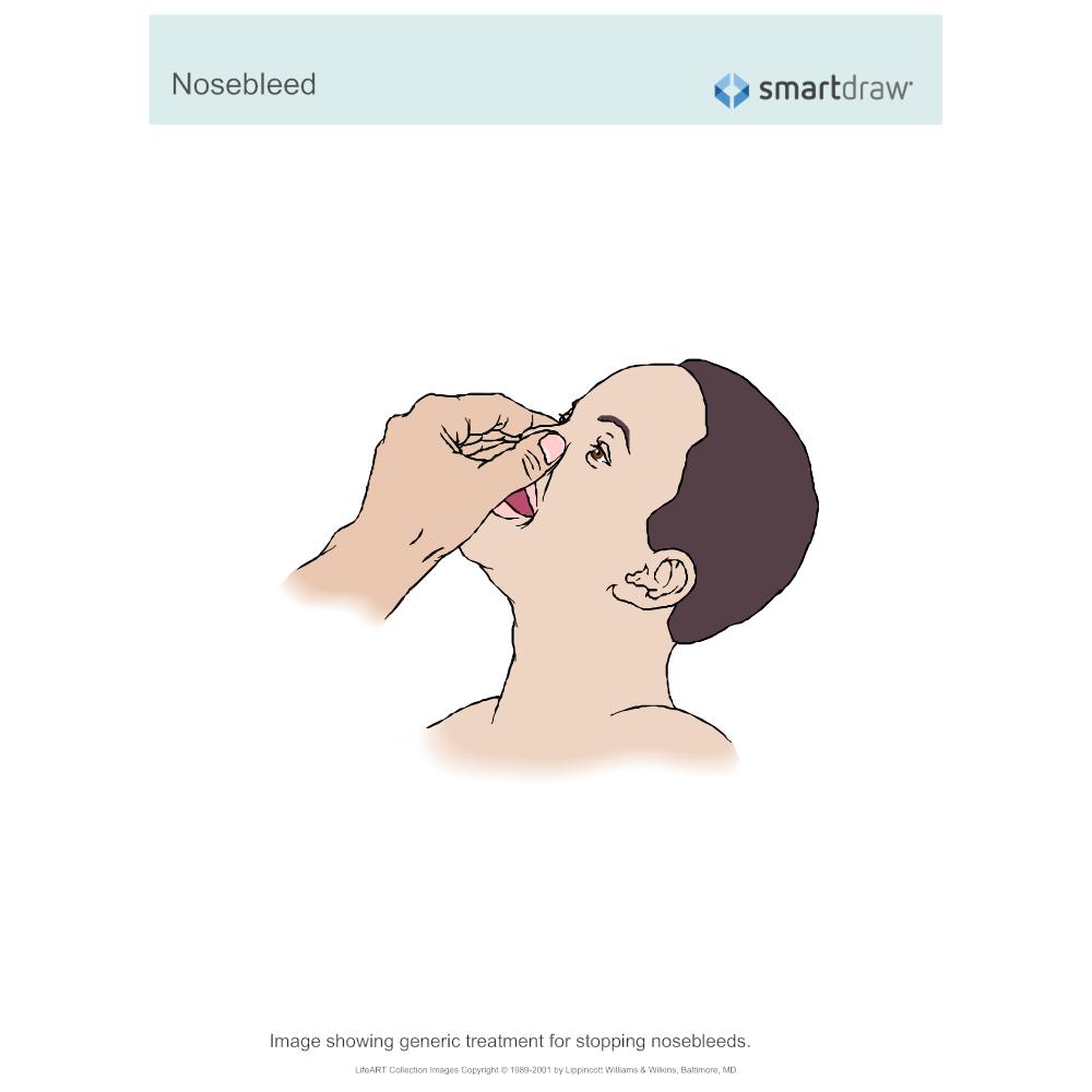 Example Image: Nosebleed