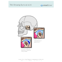 TMJ Showing Synovial Joint