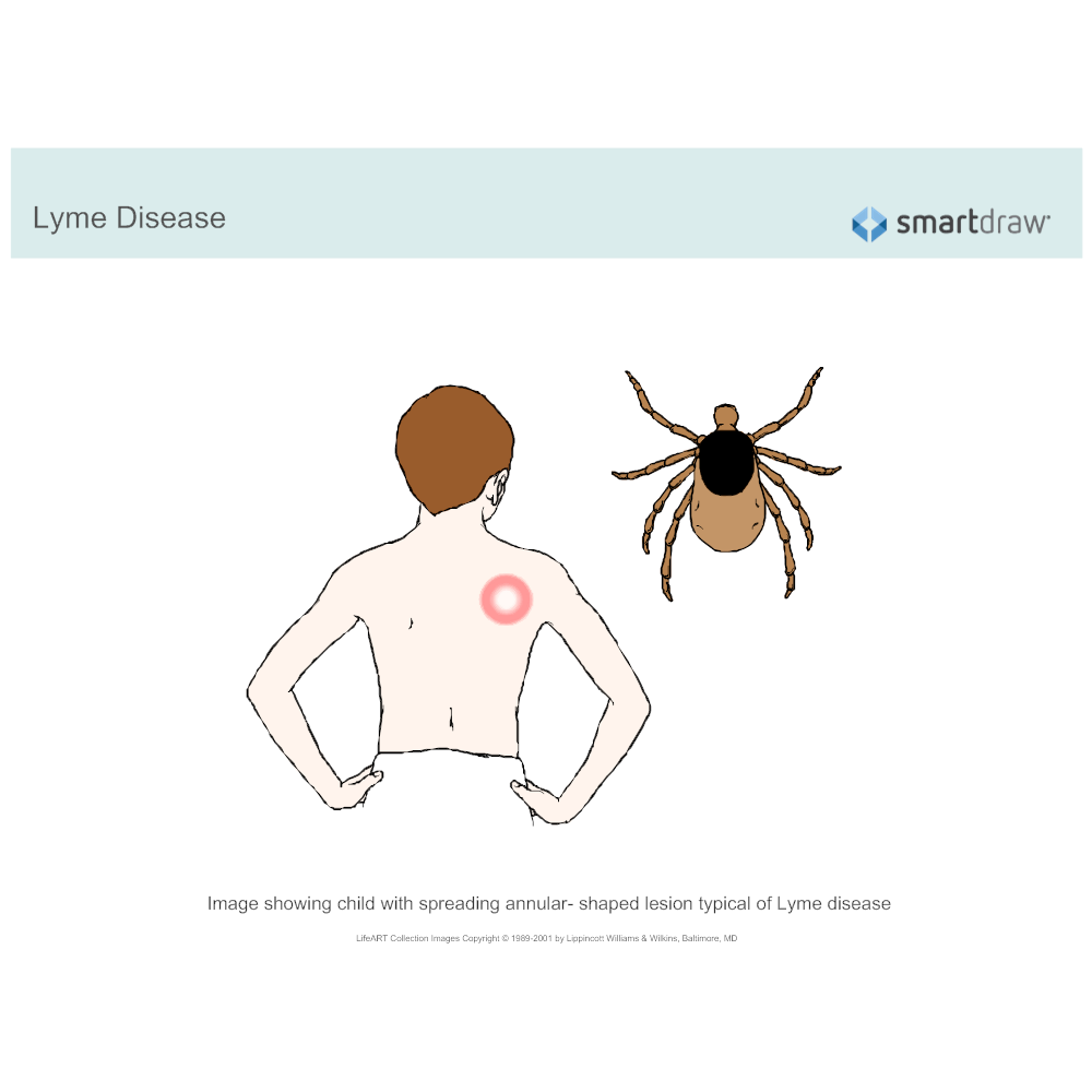 Example Image: Lyme Disease